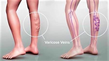 hemorrhoids varicose veins pregnancy