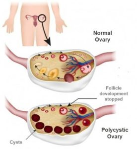 Polycystic Ovarian Syndrome PCOS gynecologist alain
