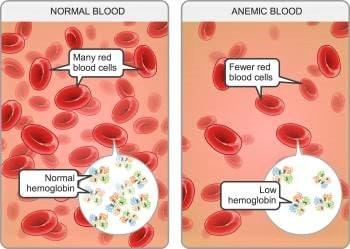 anemia pregnancy alain