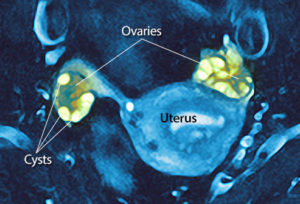 Ovarian Cysts Tumors